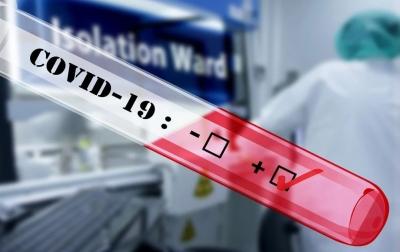 Pasien Meninggal Akibat Covid-19 di Sumut Mencapai 237 Orang
