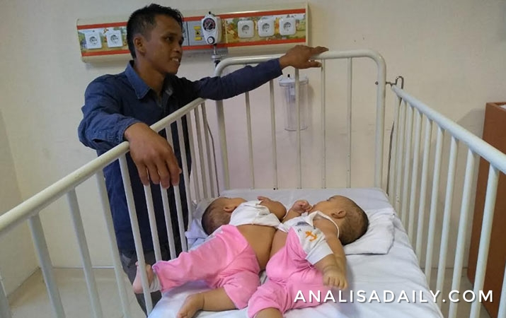 kondisi-kesehatan-bayi-kembar-adam-dan-malik-sangat-baik